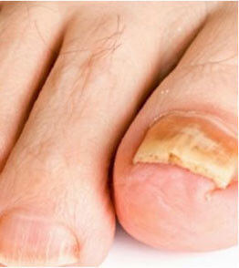 urgent-fungus-destroyer toe