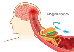 block red blood cell cause clogged in artery before into brain.