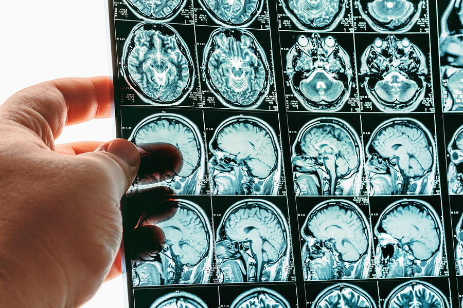 EMF and the brain scan doctor