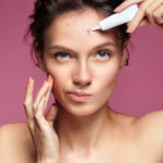 Vitamins for acne feature