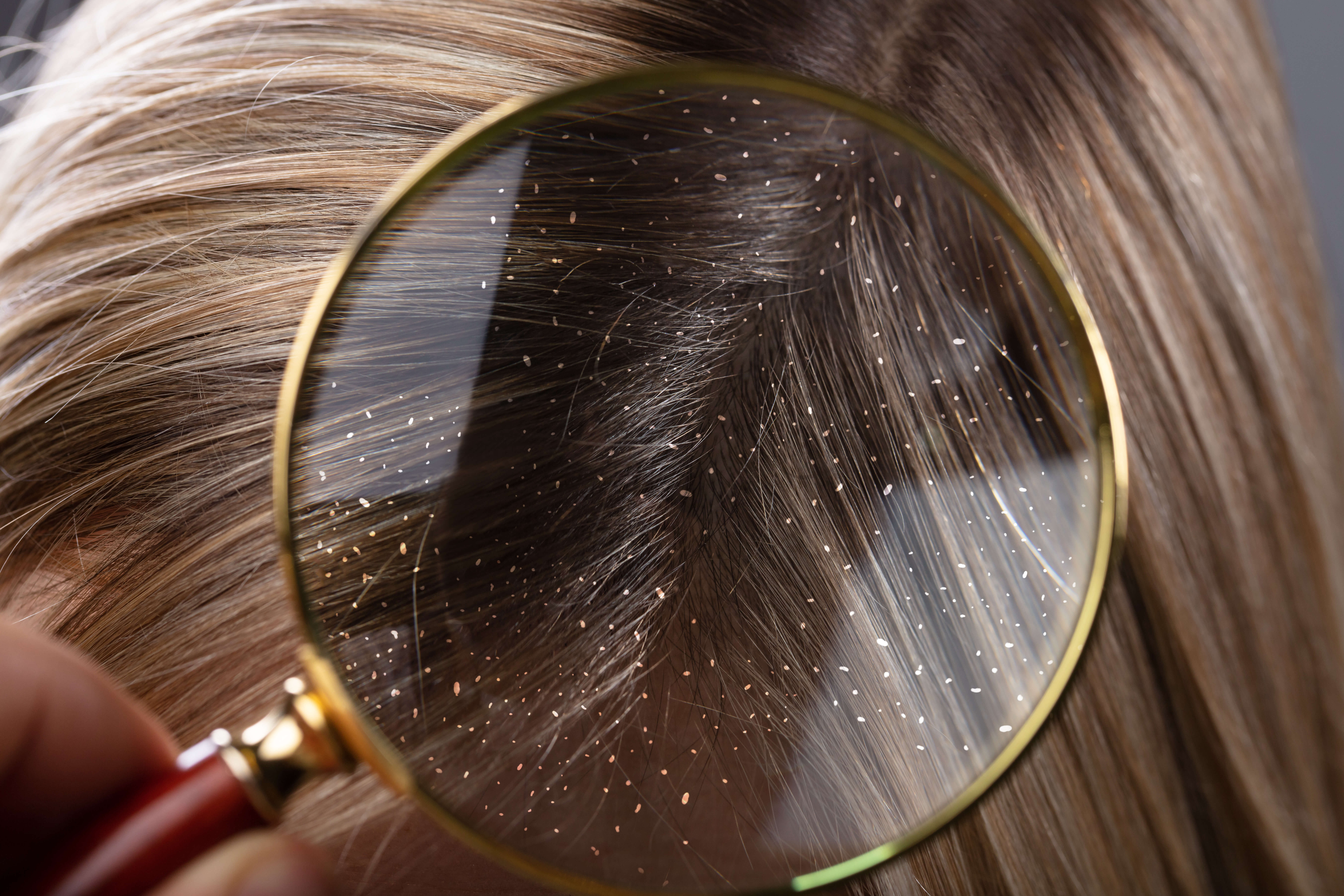 Get rid of dandruff quickly