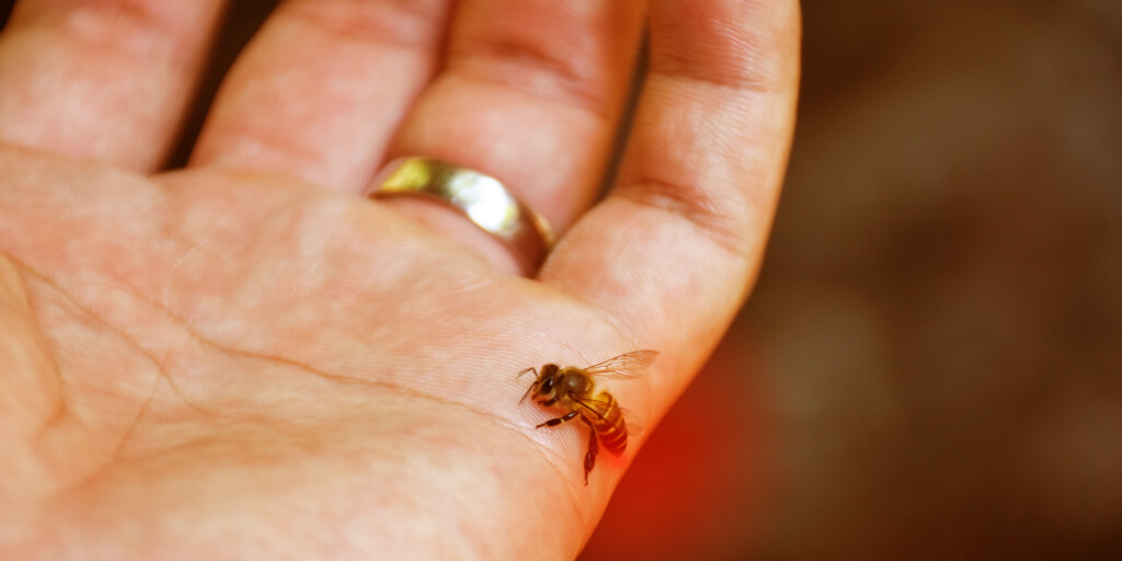 Natural Bee Sting Remedies for Quick Relief_Attracts Bees