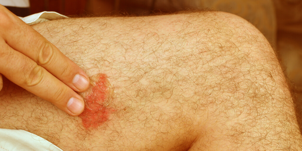 Natural Bee Sting Remedies for Quick Relief_Get Worse